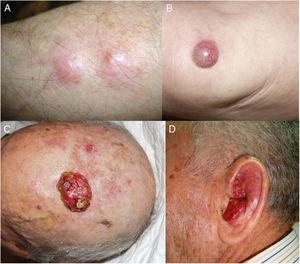 A, Clinical presentation of Merkel cell carcinoma in 4 patients in the form of subcutaneous nodular lesions. B, Isolated erythematous tumor. C and D, Two ulcerated lesions (friable surface).