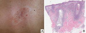 A, Papular and comedonal lesions of folliculotropic mycosis fungoides (FMF). B, Histology of an incipient or superficial papular FMF lesion that exhibits lymphoid folliculotropism and follicular mucinosis processes.