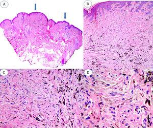 A, Panoramic image of the lesion in which 2 areas of blue nevus are evident (arrows), one of about 3mm and the other of about 1mm. B, Compact nests of spindle-shaped melanocytes located in the papillary and superficial reticular dermis without the presence of nests at the dermoepidermal junction (hematoxylin-eosin [HE], original magnification ×4). C, Detail of melanin distribution, with denser granules visible in the deepest part of the lesion (HE, original magnification ×10). D, Detail of melanocytes, showing monomorphic nuclei and the absence of mitosis and necrosis (HE, original magnification ×20).