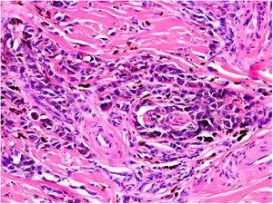 Intraneural invasion by melanoma cells (neurotropism). Hematoxylin-eosin, original magnification ×200.