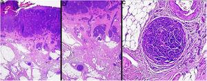 Presence of microscopic metastases (microsatellitosis) deep to a primary melanoma. Hematoxylin-eosin, original magnification ×40 (A), ×100 (B), ×200 (C).