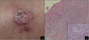 A, Clinical image. B, Histological image.
