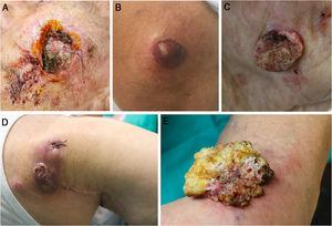Clinical images of 5 of the skin tumors from this study. A, recurrent squamous cell carcinoma on the cheek with clinical perineural invasion. B, Superficial spreading melanoma on the knee with a Breslow thickness of 7.70 mm. C, Invasive squamous cell carcinoma on the cheek with a thickness of 6.5 mm. D, Recurrent Merkel cell carcinoma on the right shoulder. E, Verrucous carcinoma with a 5-cm diameter on the knee.