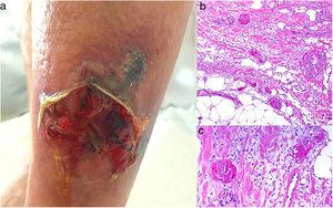 Calciphylaxis. A, An ulcerated, necrotic plaque on the leg. Note the violaceous border. Thrombosed vessels in the media of the dermis. Hematoxylin-eosin (H&E), magnification × 100. C, Detail of the thrombosed vessels. H&E, × 200.