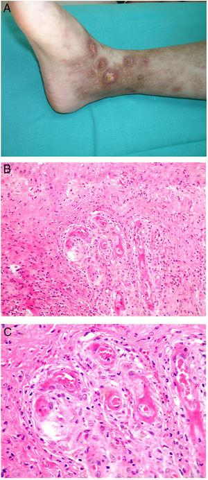 Livedoid vasculopathy. A, Erythema, multiple ulcers, and discoloration of the skin due to red cell extravasation on the leg of a 62-year-old woman with lupus erythematosus and venous insufficiency. B, Glomerular-like vascular aggregates in the superficial dermis. Hematoxylin-eosin, magnification × 100. C, Detail of the previous microphotograph. Note the vascular wall thickening, elevated number of pericytes, and homogeneous deposits of eosinophilic fibrinoid material. Around the blood vessel, note extravasated red cells, occasional hemosiderin-laden macrophages, a lymphomacrophagic infiltrate, and collagen fibrosis; Hematoxylin-eosin, magnification × 200.