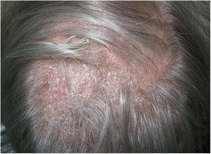 Alopecia plaque with diffuse scaling and underlying erythema.