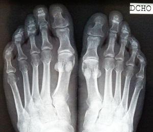 Simple anteroposterior x-ray with no abnormal bone findings.
