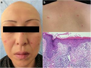 (a) Alopecia totalis on the scalp and erythema scattered on the cheek, nose, and lips. (b) Infiltrative erythemas on the upper cheek. (c) A biopsy specimen showing epidermal atrophy, liquefaction of the basement membrane, dyskeratotic epidermal cells, and focal mononuclear cell infiltration in the dermis.