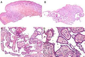 Histopathological features of the lesion. Hematoxylin-eosin, original magnification ×40 (A and C), ×100 (C), and ×200 (D).