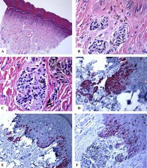 Immunohistological features of acral melanocytic nevus of the right big toe with (Melanocytic Acral Nevi with Intraepithelial Ascent of Cells, MANIAC): A-C: Sections show acral skin with a small well-circumscribed, symmetric compound melanocytic nevus. There is no confluence of nests. The nevomelanocytes lack any significant cytological atypia. Within the dermis, there are fibroplasia and few melanophages. D-E: Melan-A decorates the junctional and dermal nevomelanocytes. It shows a lentiginous pattern with the upward pagetoid migration of some nevomelanocytes (lacking cytological atypia) arranged as solitary units in the spinous layer (MANIAC). F: A patchy HMB45 staining is seen in the lentiginous nevomelanocytes along the dermoepidermal junction. HMB45 also stains occasional solitary nevomelanocytes in the lower reaches of the epidermis. Almost all of the dermal nevomelanocytes lack HMB45 protein expression, i.e immunohistochemical maturation. (Original magnifications: A: 20x, B: x200, C: x200, D: x 400, E: x200, and F: 400).