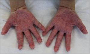 Erythematous scaly plaques on the palms.