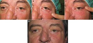 A-C, Male patient aged 56 years with postoperative ectropion and major external and horizontal canthal laxity, in addition to cicatricial components. D, Postoperative outcome after tarsal strip canthoplasty (video, additional material on the website).