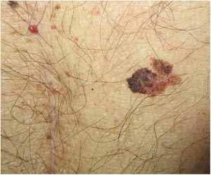 Melanoma diagnosed 4 months after a solid organ transplant, located just a few centimeters from the laparotomy scar, highlighting the importance of a full dermatologic examination before the procedure.