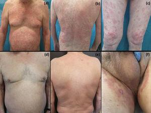 Clinical progression. Maculopapular rash on the trunk and upper limbs (A, B). Annular erythematous, edematous lesions with a more pronounced border and slight scaling (C). Resolution of lesions on the trunk and limbs within 2 weeks of interruption of pazopanib (D, E) and improvement of inguinal scrotal lesions (F).