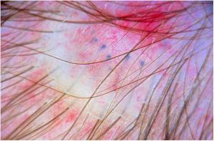 Dermoscopic features of membranous aplasia cutis congenita. Translucency sign: shiny surface, thin telangiectatic vessels, and blue globules corresponding to hair bulbs. Note also the absence of follicular openings.