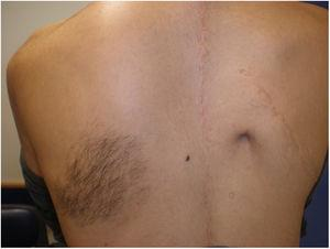 Hyperpigmented macule with hair over the left shoulder. Note the adjacent surgical scar due to the history of severe scoliosis.