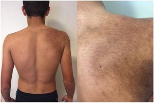 Hyperpigmented macule on the right scapular region and shoulder, present since birth. The comedones and hair on the macule appeared at puberty.