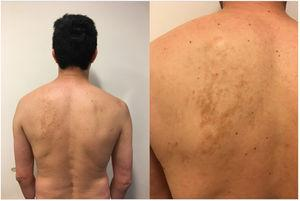Adult patient who presented macules that simulate grouped hyperpigmented islands located on the left scapular region.