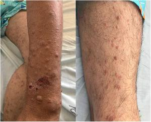 Clinical characteristics. On the upper extremities: skin-colored papules and nodules with an infiltrated appearance, some of which are ulcerated and others with a central crust. On the lower extremities: papules coalescing to form brownish-red plaques.