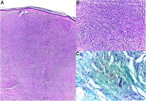 Histopathology. A and B, Dermis with nodules formed by fusiform histiocytes in a storiform pattern (hematoxylin–eosin). C, Fite-Faraco staining. Multiple acid-fast and alcohol-fast bacilli.