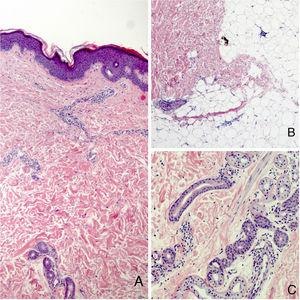 Histology. A. Hematoxylin-eosin, original magnification, ×10. B and C. Hematoxylin-eosin, original magnification, ×40.
