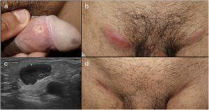 Patient 3 with painful genital ulcer on the inner face of the foreskin (a) associated with painful bilateral inflammatory adenopathy in the groin (b). Ultrasound of the groin showed greatly enlarged lymph nodes with cortical asymmetry and limited vascularization. After treatment with doxycycline 100 mg every 12 hours for 21 days, lymph node enlargement reduced leaving a residual scar.