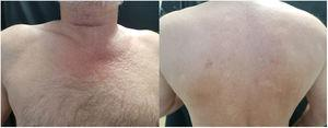 A, Increased skin stiffness on the chest with papules and peau d'orange in a V-shaped pattern. B, Waxy stiffness of the skin of the back.