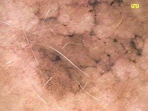Melanoma in situ with angulated lines, defined as pigmented lines forming a rhomboid or zig-zag pattern.