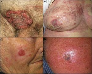 Various clinical presentations of eccrine porocarcinoma.
