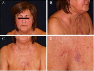 Clinical images. A, Periocular and bimalar edema and erythema. B and C, Edema of the face and neck, notable in the cervical and clavicular regions. D, Collateral venous circulation in the region of the sternum.