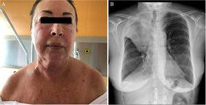 Clinical and radiologic image of the second patient. A, Facial erythema and edema of the face and neck. B, Posteroanterior chest x-ray. Golden S-sign. Obstructive atelectasis of the right upper lobe in the context of a right hilar lung mass. Right pleural effusion.
