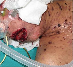 Multiple generalized blisters, erosions, and scabs with severe involvement of the oral mucosa.