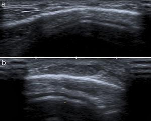 High-frequency ultrasound (12MHz) showing poorly-defined hypoechoic nodules in the hypodermis surrounded by a hyperechoic ring and joined by a thin hyperechoic line.