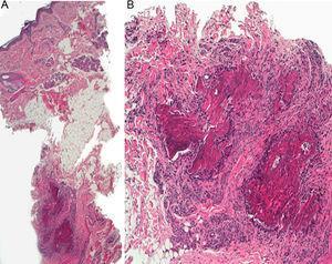A, Hematoxylin-eosin, original magnification ×4. B, Hematoxylin-eosin original magnification ×10.