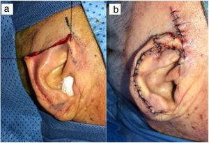 Surgical defect after resection (a). Positioning and suture of the flaps (b).