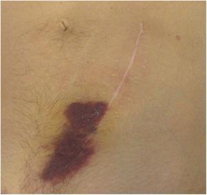 Cutaneous Kaposi sarcoma in the surgical scar.