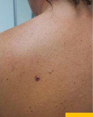 A violaceous papule surrounded by a homogeneous purpuric halo on the back of a 43-year-old woman.