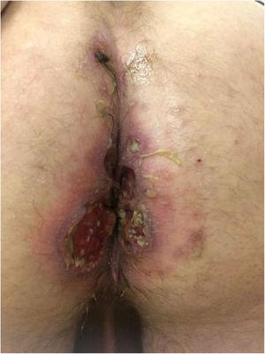 Patient 10, appearance of the perianal ulcers.