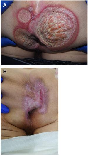 A, Patient 3, perianal ulcers on presentation. B, Complete reepithelialization of the ulcers after 3 months.