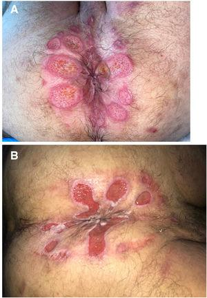 A, Patient 6, perianal ulcers on presentation. B, Improvement 2 weeks after discontinuing application of the hemorrhoid ointment.