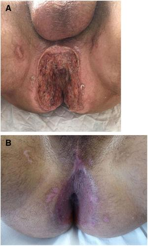 A, Patient 7, perianal ulcers on presentation. B, Complete reepithelialization was achieved after partial skin grafts were placed.