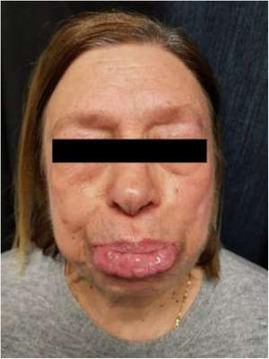 Symmetrical thickening of the lower lip.