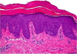 Orthokeratosis alternating with foci of parakeratosis (hemoxylin eosin, original magnification ×40). The epidermis shows regular acanthosis and psoriasiform hyperplasia, and scarce inflammatory infiltrate is evident in the dermis.