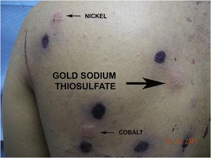 Patch tests showing intense positivity for gold sodium thiosulfate (infiltrated plaque with blistering).