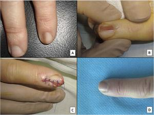Longitudinal excision biopsy of the nail apparatus. A, Pale brown longitudinal melanonychia, which histologically corresponds to nail hypermelanosis. B, Under local anesthetic, longitudinal excision is performed in a cylindrical shape from the proximal nail fold to the hyponychium, including the entire nail apparatus. C, Direct closure of the defect by suture from nail plate at the surface to the deep nail connective tissue. D, After 1year, the result is a normal nail without any sign of permanent dystrophy, just narrower.