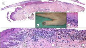Subungual melanoma. A, Low-magnification longitudinal view of the entire nail apparatus. The patches of inflammatory infiltrate of irregular distribution are already apparent at low magnification of the distal matrix, nail bed, and also in the hyponychium. B, In the clinical image, an irregular and complete melanonychia is shown of the nail of the right thumb. Of note is the punctual pigmentation of the hyponychium (arrow). C, Detail of the matrix with melanocytes with evident atypia (arrow). D, Detail of the hyponychium with proliferation of atypical melanocytes in the basal layer and lymphocyte infiltrate at the base of the epidermal ridge. E, Detail of a nail bed with patchy lymphocyte infiltrate beneath a basal epidermal layer with increased number of melanocytes. F, Detail of the nail matrix with proliferation of atypical melanocytes that are present throughout the full thickness of the nail epithelium.