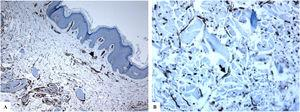 CD34 immunostaining in normal skin. A: variable-sized dermal blood vessels lined by CD34-positive endothelial cells (arrowhead). B: CD34-positive dermal dendrocytes (arrow). (Original magnifications. A: ×200, B: ×400).