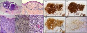 Histopathologic and immunohistochemical findings of the skin biopsy. On the left, hematoxylin–eosin (H-E) staining with images from smallest to largest magnification under an optical microscope, showing the histological characteristics of cutaneous follicle center B-cell lymphoma: lymphocyte infiltrate located in the middle and deep dermis with a mixed (nodular/diffuse) growth pattern and presence of cells of centrocytic and centroblastic appearance. On the right, immune-staining panel compatible with primary cutaneous center follicle lymphoma. The panel shows positive staining for CD10, CD20, Bcl-2, and Bcl-6 (hematoxylin–eosin, x2, x4, x10, x20, x20; IHQ, x2, x2, x2, x4).