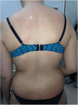 Clinical manifestations of acute graft-vs-host disease, with erythematous, round, shiny papules and plaques on the torso and arms.