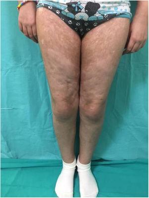 Clinical manifestations of sclerodermiform chronic graft-vs-host disease, with abnormal pigmentation and embossed appearance of the skin in the lower limbs.
